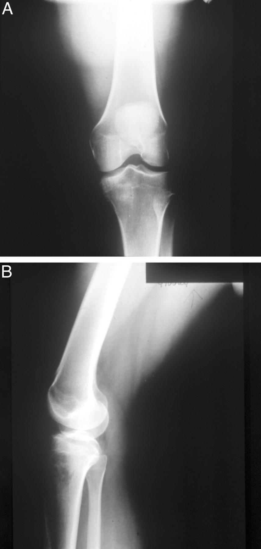 Tibial plateau stress fracture running