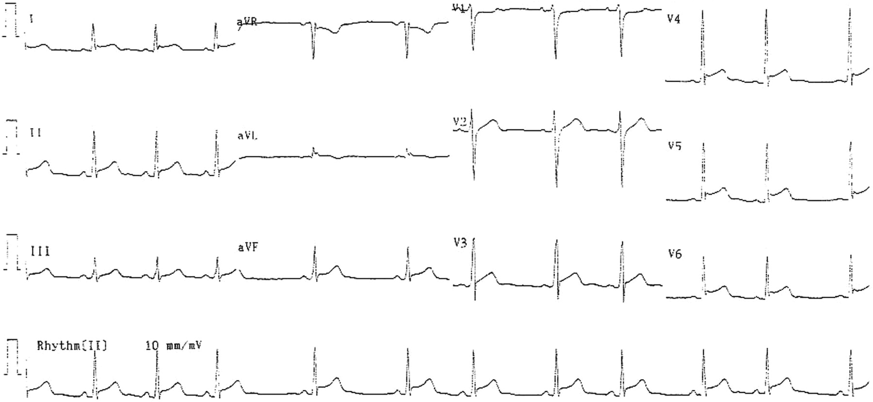 Myocardial Infarction Associated with Adderall XR and