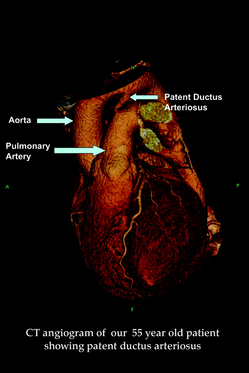 Not Ductus arteriosus patent adult