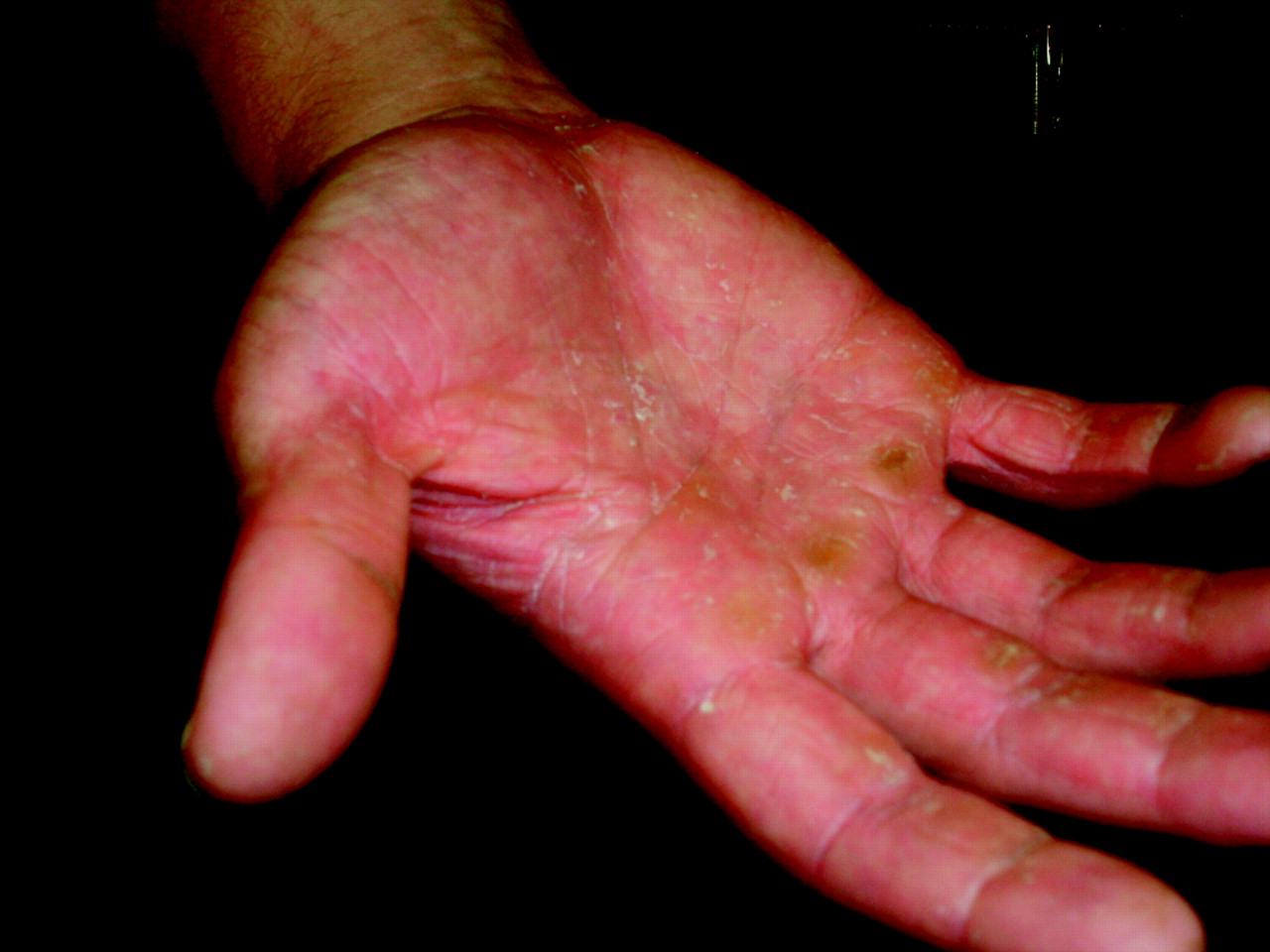 Hand Dermatitis: Review of Etiology, Diagnosis, and ...