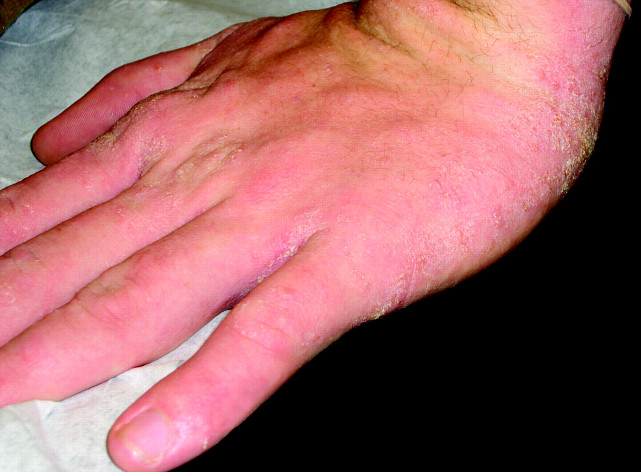 Hand Dermatitis: Review of Etiology, Diagnosis, and Treatment