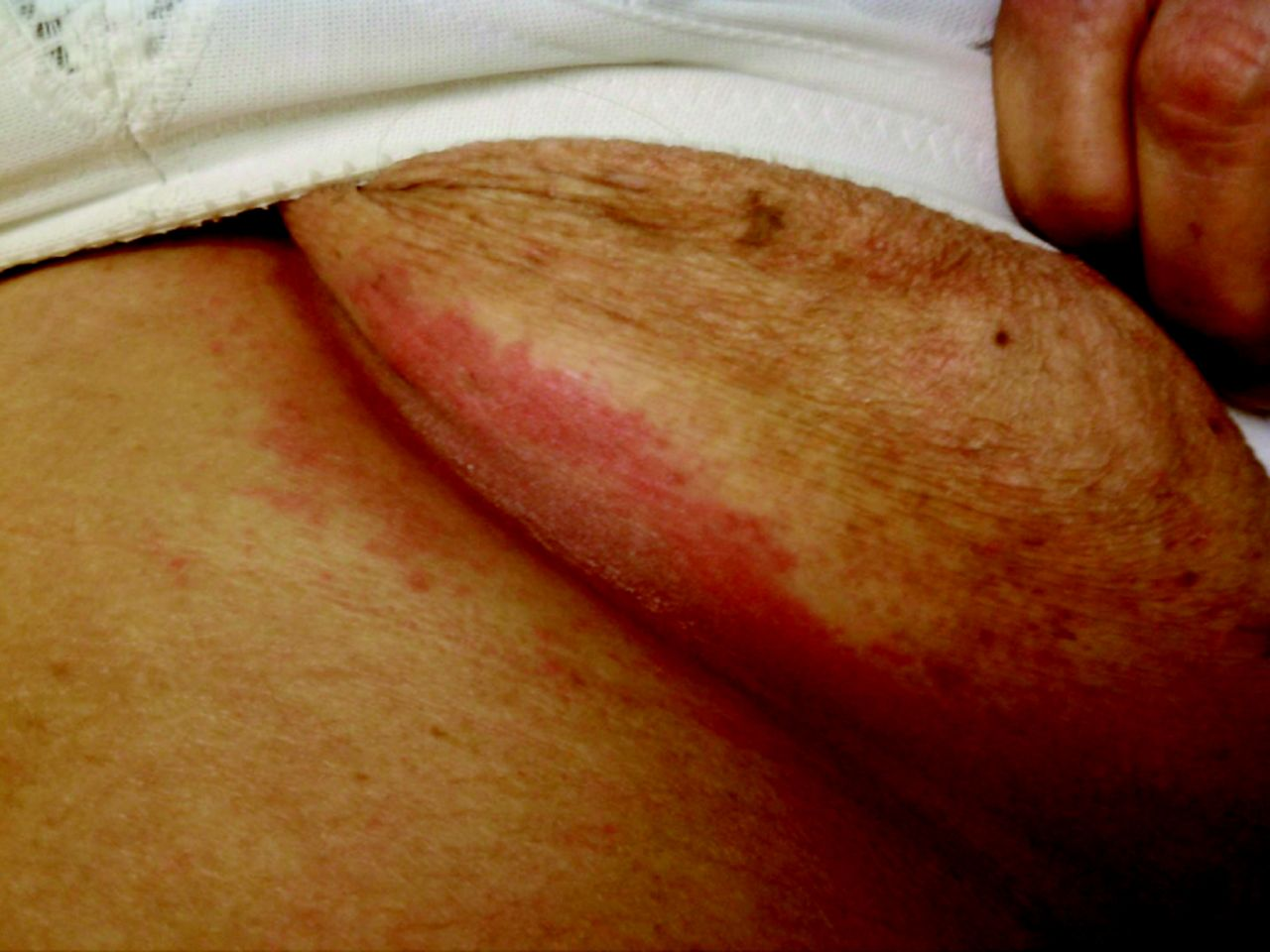"Resistant ""Candidal Intertrigo"": Could Inverse Psoriasis Be"