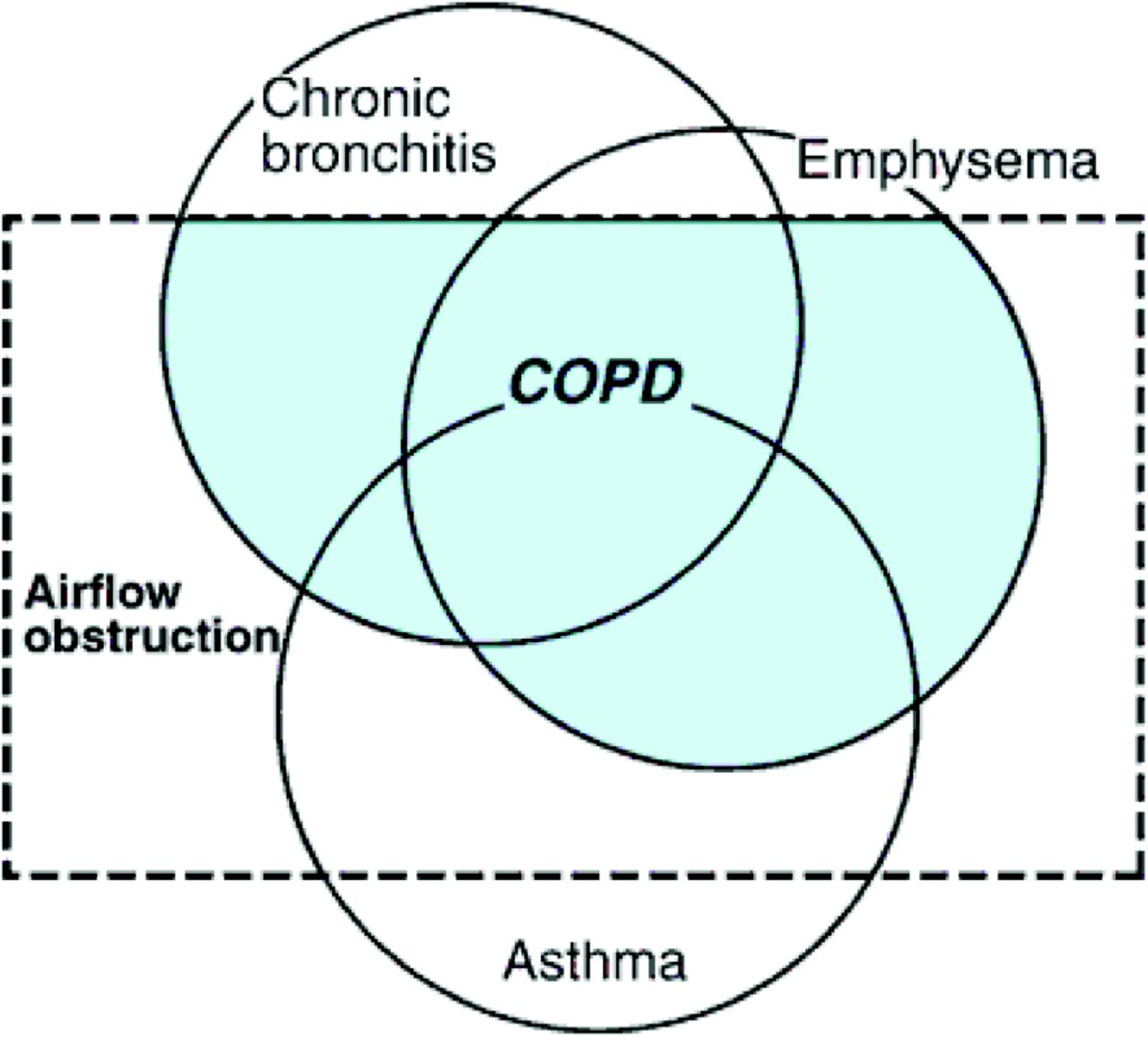 Asthma  Chronic Obstructive Pulmonary Disease  Copd   And The Overlap Syndrome